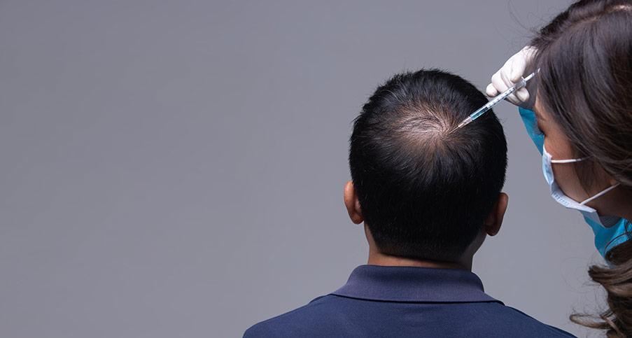 Finns det risker med att utföra hårtransplantation?